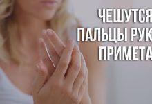 примета чешется палец на правой руке