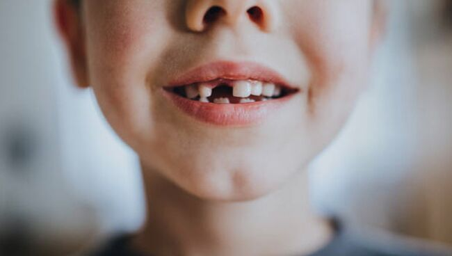 Что означает сон про зубы