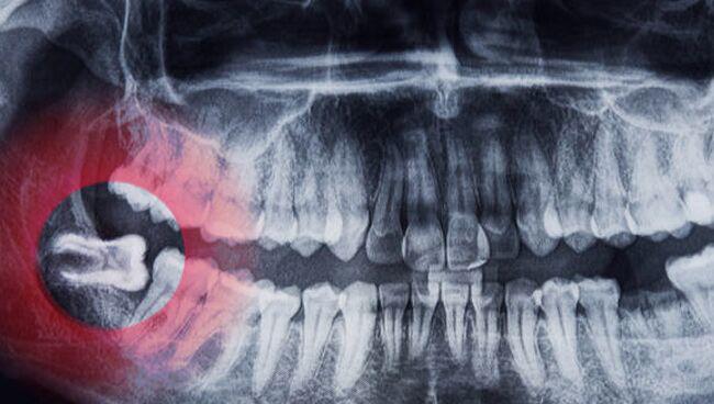 К чему снятся зубы, которые выпадают с кровью