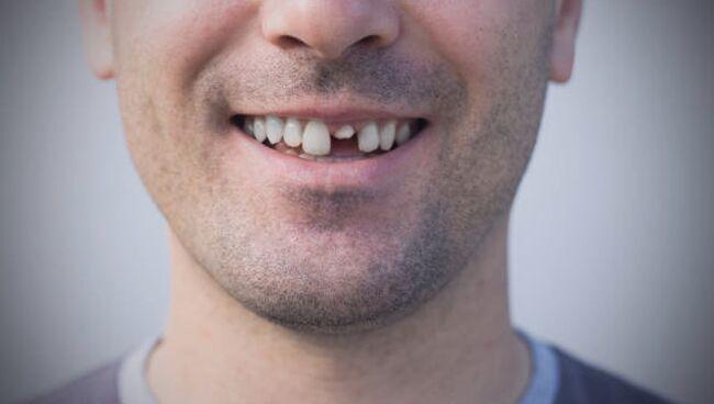 Приснилось, что выпал передний зуб