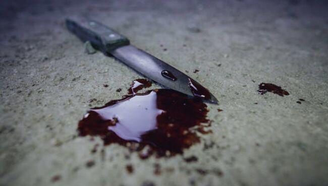 Сонник толкование снов: к чему снится кровь